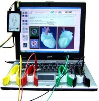 Комплекс диагностики сердца Кардиовизор
